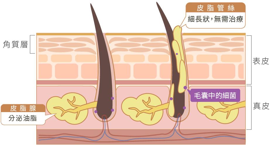 皮脂管絲與粉刺的差異
